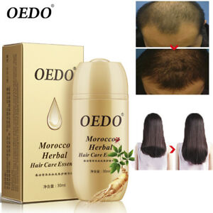 OEDO-Morocco-Herbal-Hair-Care-Essence-For-Men-Women-Hair-Fast-Growth-Treatment