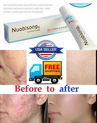 2PCS!!!!!!!Nuobisong Removal Acne Treatment Gel Scar Repair Cream
