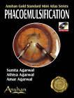 Mini Atlas of Phacoemulsification by Sunita Agarwal (Mixed media product, 2007)