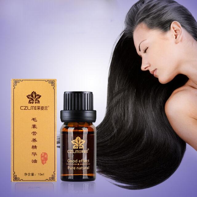 Best Natural Hair Loss Fast Restoration Oil Growth Essence Pilatory Baldness~