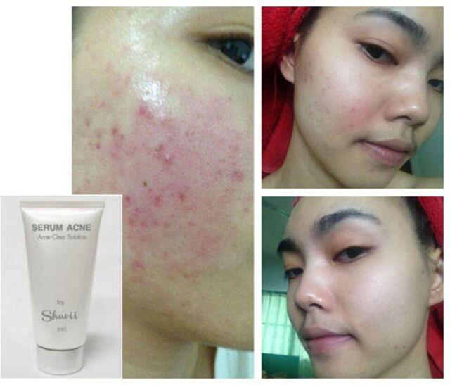 Tester 10 ml - Serum Acne Clear treatment acne - Acne Skincare