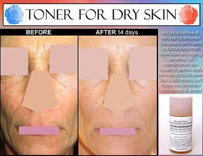 toner for dry skin