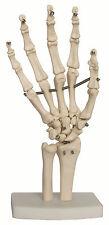 Hand & Wrist Joint Anatomy Model, New - Life Size Anatomical Model
