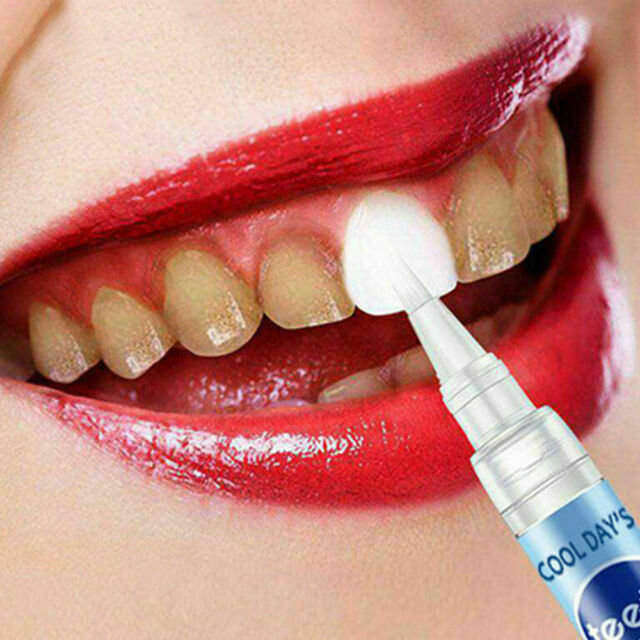 Pro Dental Teeth Whitening Pen Smile White Tooth Oral Gel