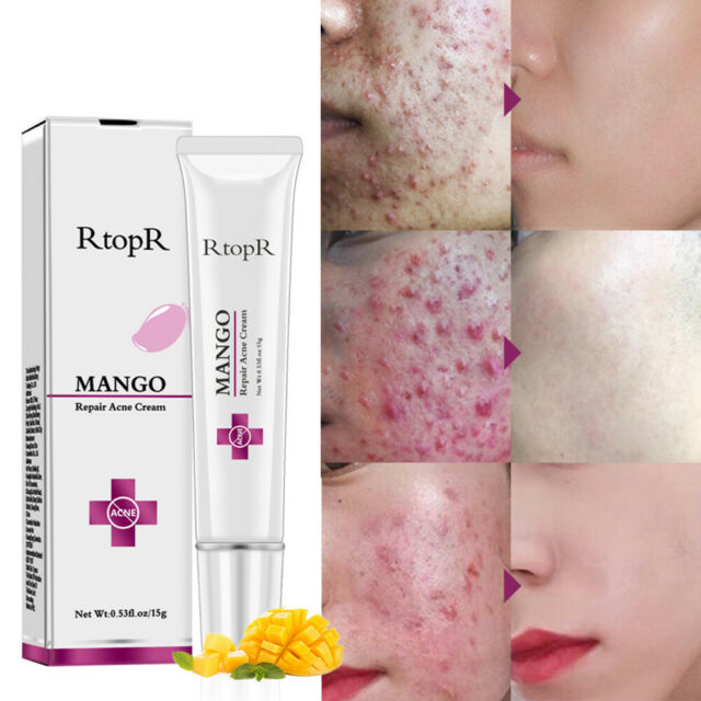 RtopR Mango Acne Remove Cream Anti Spots Scar Blackhead Shrink Pore Skin Care Tr