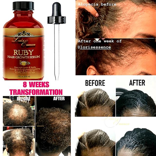 Natural Hair Loss Treatment Men Women Fast Growth Herbal Herbs