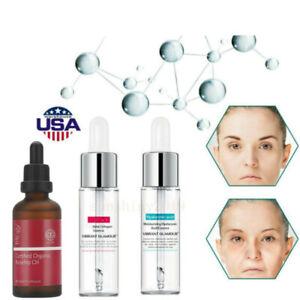 Hyaluronic-Acid-Serum-Face-Cream-Anti-Wrinkle-Skin-Care-Shrink-Remove-Anti-Aging