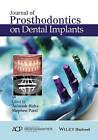 Journal of Prosthodontics on Dental Implants by Stephen M. Parel (Hardback, 2015)