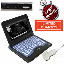 Digital Portable Notebook Laptop Ultrasound Machine Scanner System Convex Probe