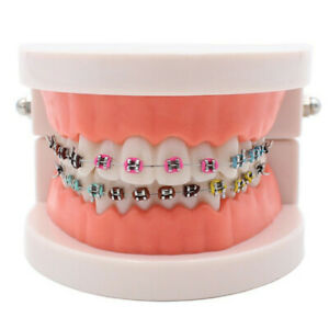 Dental-Orthodontic-Teeth-Hoop-Model-Metal-Brackets-Ligature-Tie-Adult-Standard