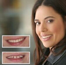 Cosmetic Teeth Snap On Small Instant Smile Secure Veneers False Dental Natural