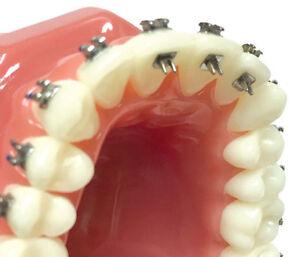 10pcs-Dental-Orthodontic-Bite-Opener-Tongue-Tamers-Bite-Builder