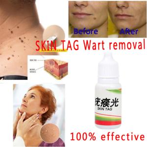 Removedor-de-verrugas-tratamiento-para-eliminar-las-verrugas-del-cuerpo