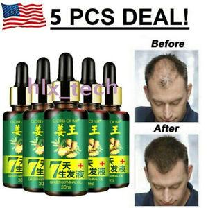 7-dia-Jengibre-Germinal-rebrote-de-cabello-Suero-Tratamiento-Aceite-de-perdida-de-cabello-de