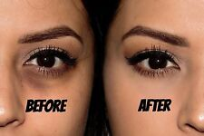 Himalaya Herbals Under Eye Cream - Reduces Dark Circles by 80% 15ml