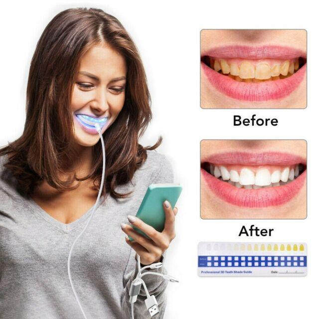 Glamza Hello Smile Led Laser Light And Tray Teeth Whitening Detox