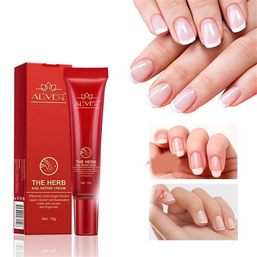 Nail Treatment Anti-fungal Repair Cream Chinese Herbal