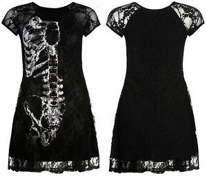 Gothic-Floral-Lace-Skeleton-Ribcage-Bones-Anatomy-Skater-Dress-Alternative-Punk
