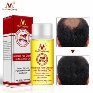 20ml-Fast-Powerful-Hair-Growth-Essence-Hair-Loss-Essential-Oil-Liquid-Treatment