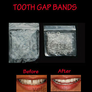 CLEAR-TEETH-GAP-BANDS-3-16-034-ORTHODONTIC-BANDS-HEAVY-FREE-FREE-SHIPPING
