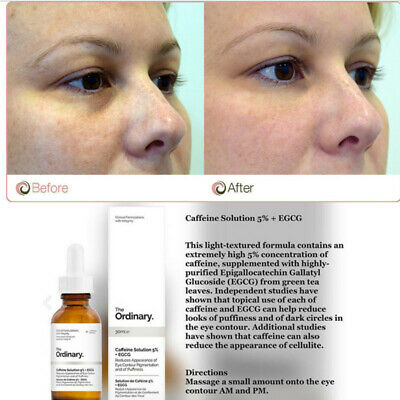 The Ordinary 5 Caffenie Egcg Eye Serum Eye Cream For Wrinkles