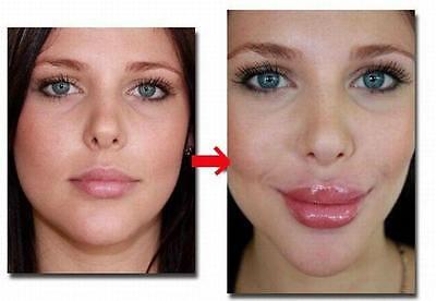 BEST Lip Plumper Filler Enlargement Enlarge Derma Augmentation Pump Machine Sale