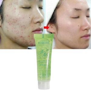 Aloe-Vera-Gel-hydratant-visage-anti-rides-creme-des-cicatrices-d-039-acne-Pelez-rapi