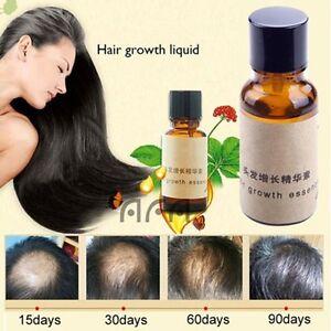 Original-Hair-Growth-Pilatory-Essence-Oil-Baldness-Alopecia-anti-Loss-New-ne