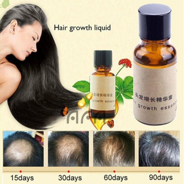Original Hair Growth Pilatory Essence Oil Baldness Alopecia anti Loss New JN