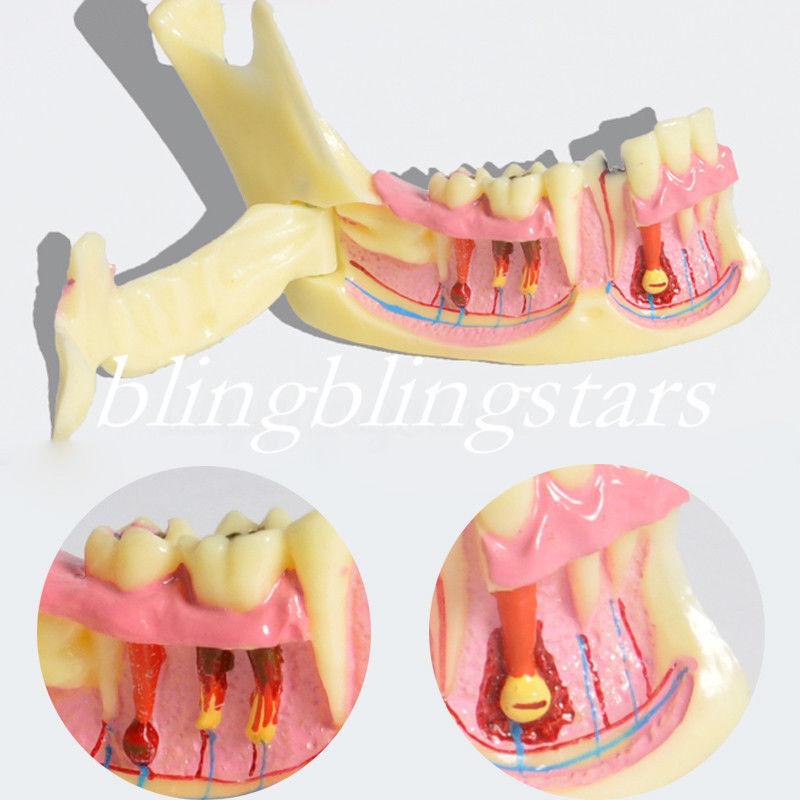 Dental Teeth Low Jaw Bone Tissue Mandible Anatomical Jawbone