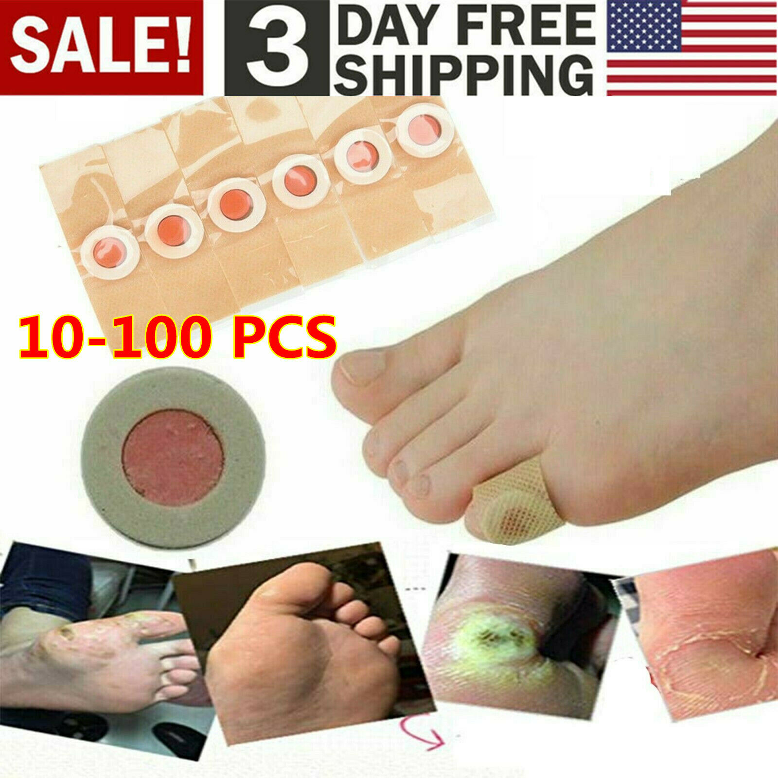 10x Medical Plaster Plantar Wart Corn Removal Foot Care Stickers Relief For Sale Online Ebay
