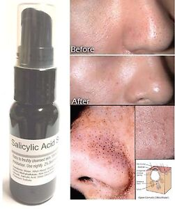 Salicylic-Acid-Serum-2-By-ModelSupplies-Eradicate-Blackheads-Clogged-Pores-Acne