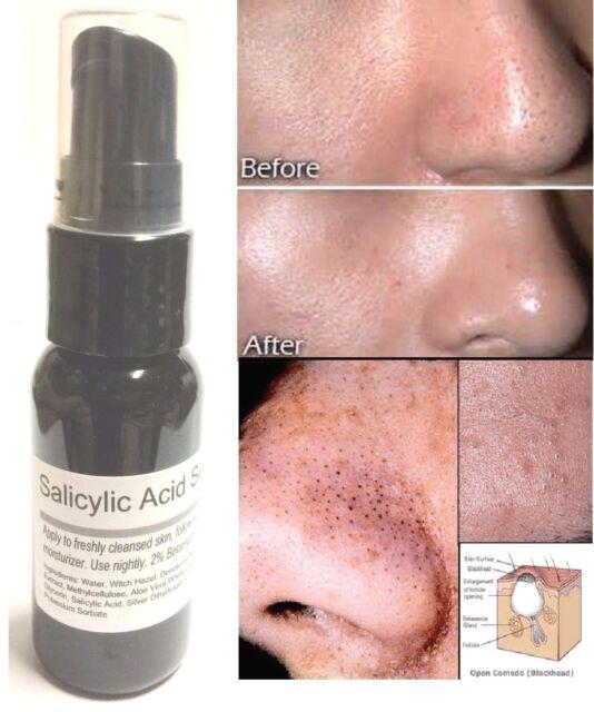 Salicylic Acid Serum 2% By ModelSupplies Eradicate Blackheads Clogged Pores Acne