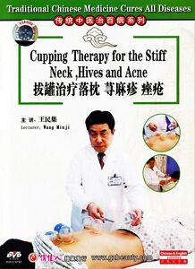 Chinese-Medicine-Cupping-Therapy-for-the-Stiff-Neck-Hives-and-Acne-DVD