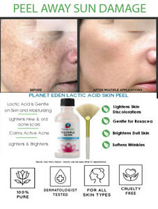 Dermatologist Grade Lactic Acid Peel For Rosacea Sensitive Skin Peel