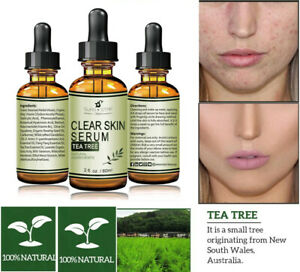 100-Pure-Tea-Tree-Serum-Acne-Treatment-Anti-Acne-Scar-Pimple-Removal-Skin-Care