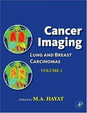 Cancer Imaging: Lung and Breast Carcinomas-ExLibrary