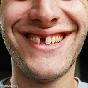 an instant smile temporary tooth replacement fix missing tooth false tooth ebay. Black Bedroom Furniture Sets. Home Design Ideas