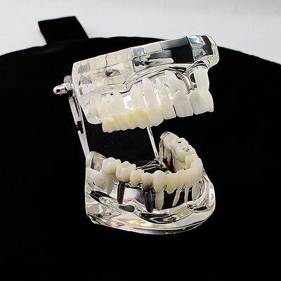 1pc Dental Implant Disease Teeth Model with Restoration & Bridge Tooth model AA