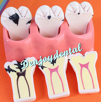 Dental Patient Education Teeth Model Caries Treatment Study Model ZYR-4013