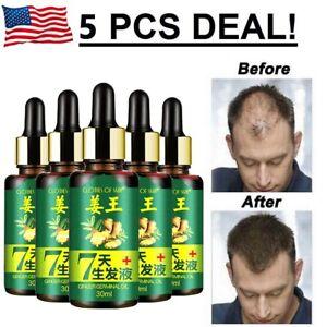 5x Hair Regrow 7 Day Ginger Germinal Serum Essence Oil Loss Treatement Growth