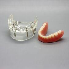 Dental Model #6002 02 - Overdenture Inferior with 4 Implants Demo Model