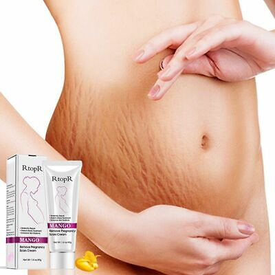 40g Rtopr Mango Remove Pregnancy Scars Acne Cream Stretch Marks