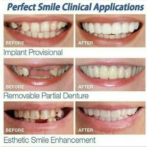 Top-And-Bottom-Cosmetic-Veneers-Instant-Smile-Braces-Snap-On-Smile-Fake-Teeth