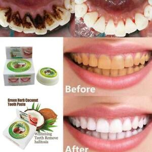 10g-Coconut-Oil-Toothpaste-Herbal-Natural-Clove-Mint-Teeth-Whitening-Neu-W2Z8