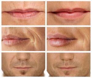 Microcurrent-RF-Lip-Filler-Plumper-Face-Lift-Wrinkle-Eraser-Skin-Care-Machine