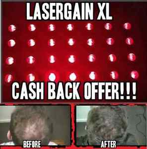 Laser-Comb-Hair-Growth-Loss-Regrowth-Treatment-28x-More-Power-Than-Others