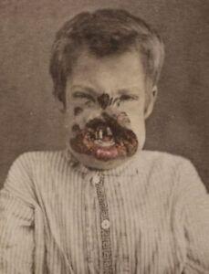 Antique-Medical-Congenital-Syphilis-Photo-350-Oddleys-Strange-amp-Bizarre