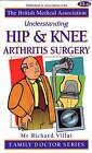 Understanding Hip and Knee Arthritis Surgery by Richard N. Villar (Paperback, 2001)