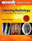 Learning Radiology: Recognizing the Basics by William Herring (Paperback, 2015)